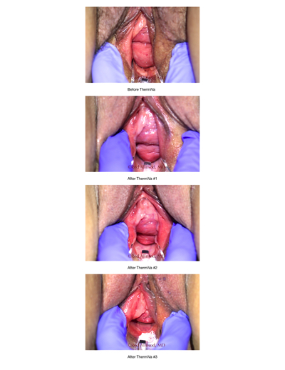 loose skin cases section 2