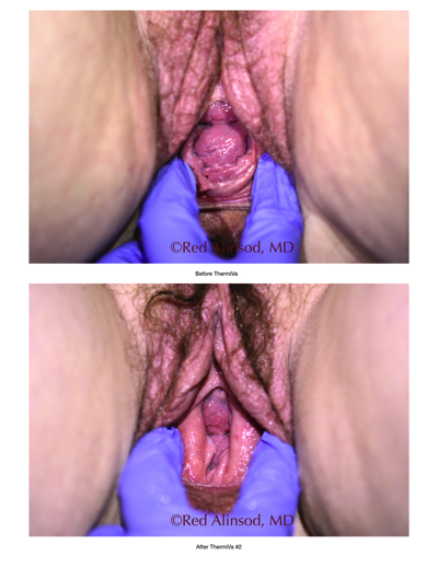 loose skin section 3 cases