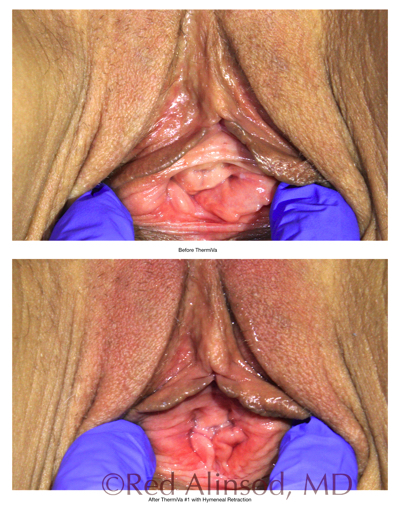 loose skin section 4 cases